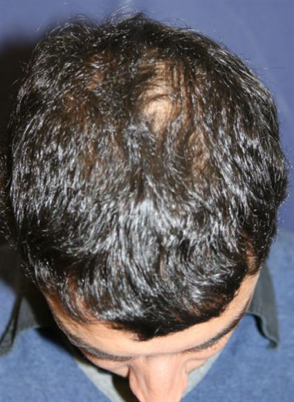 Hair Restoration Before